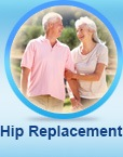 Hip Replacement - Justin Klimisch, MD - Adult Reconstruction